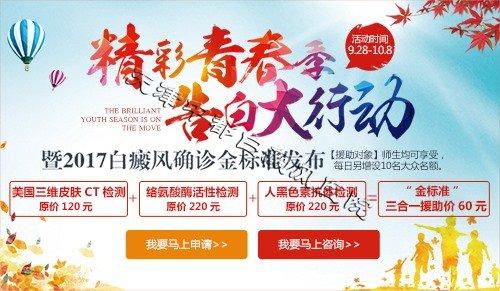 天津中都有什么治疗白癜风的技术?