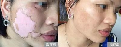 如何治好脸上的白斑?