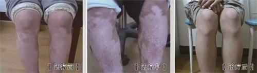 腿部白癜风怎么治?
