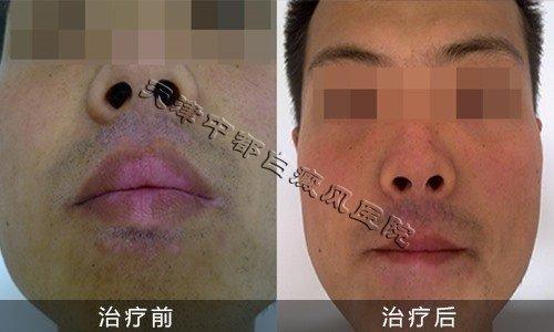 脸上白癜风治疗前后对比图