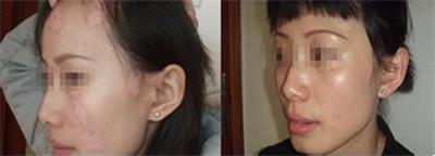 怎样有效治疗脸部白癜风