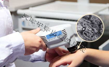 美国皮肤三维CT