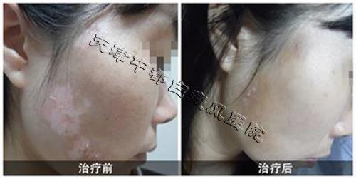 脸上白癜风治疗前后的对比图